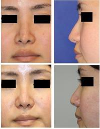 前医鼻中隔延長術術後修正術、小鼻縮小術、鼻孔形態修正術 - 美容外科医のモノローグ