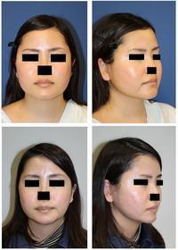 下顎骨スティック骨切術、外板外し - 美容外科医のモノローグ
