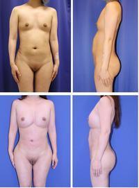 乳房脂肪移植(1年に三回)+全身美的形成術、ベイザー腹部、太もも脂肪吸引、大陰唇脂肪移植、乳頭ピアス、術後約半年再診時 - 美容外科医のモノローグ