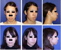 口元をひっこめ、中顔面を短縮する:多分割LeFort一型骨切術+SSRO(中顔面短縮術+上顎セットバック)術後3か月 - 美容外科医のモノローグ