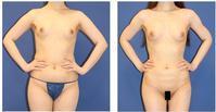 二の腕、腹部、腰回り脂肪吸引+脂肪移植豊胸術後約半年 - 美容外科医のモノローグ