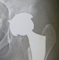 術後30日目 - 変形性股関節症から人工股関節へ