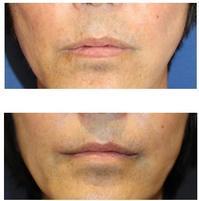 口角挙上(外側法)術後約半年再診時 - 美容外科医のモノローグ