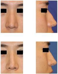 鼻根縮小術(鼻骨骨切り幅寄せ術)、わし鼻修正術術後約半年 - 美容外科医のモノローグ