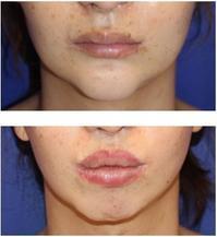 上口唇上切開による口唇増大術ならびに下口唇プロテーゼ留置術による口唇増大術 - 美容外科医のモノローグ