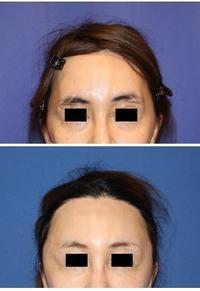 こめかみプロテーゼ留置術 - 美容外科医のモノローグ