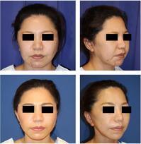 スマス(SMAS)リフト,ミントリフト,ほうれい線剥離術,アキュスカルプほうれい線上脂肪吸引,ほうれい線部糸埋入(G-Mesh)術後約半年 - 美容外科医のモノローグ