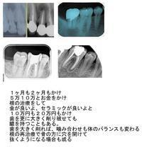 根の治療の問題点 - 自然歯科診療所