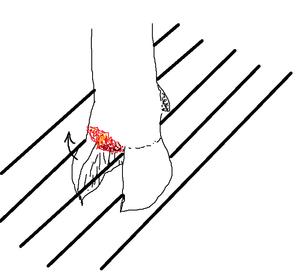 蹄骨骨折・蹄の脱臼 - 北海道中央NOSAI 宗谷支所 非公式 ブログ