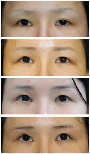 左眼:挙筋短縮術 術後約10年 , 両眉下切開 術後半年再診時 - 美容外科医のモノローグ