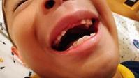 【祝】上の前歯がぬけた(7歳半・弟くん) - 続。徒然、フム店長。