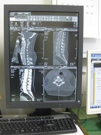 術後15年、やっぱり骨化は増えています osl-nara - 『奈良骨化症患者の会』