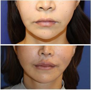 小鼻縮小、人中短縮術、口角挙上術(外側法)  術後約1年4か月 - 美容外科医のモノローグ