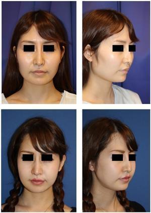 頬骨V字骨切術 、 エラ骨骨切術 術後約半年再診時 - 美容外科医のモノローグ