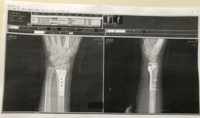 右手首骨折顛末 - 大隅典子の仙台通信