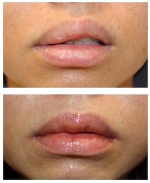 上口唇M字リップ形成術 - 美容外科医のモノローグ