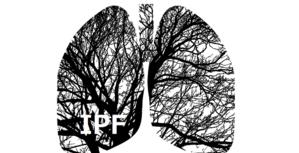 メタアナリシス:IPFに対する抗線維化薬 - 呼吸器内科医