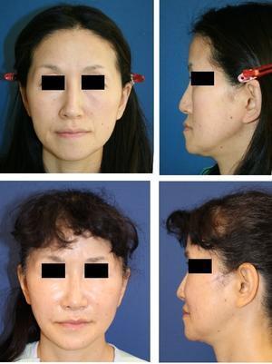 ルフォー(LeFort)一型骨切術+SSRO+顎先骨切移動術 術後約半年再診時 - 美容外科医のモノローグ