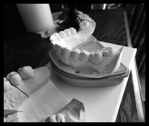 歯の模型 - 小さな幸せ