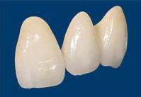 審美的に優れる先進の歯_e0004468_10514190.jpg