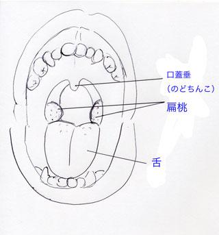 扁桃炎と病巣感染症_e0084756_16334059.jpg