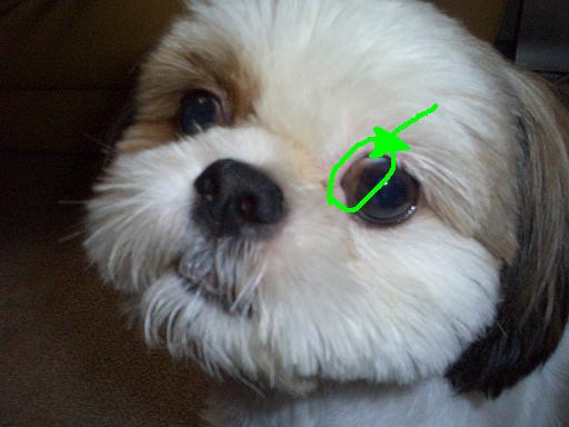 内 反 症 眼瞼
