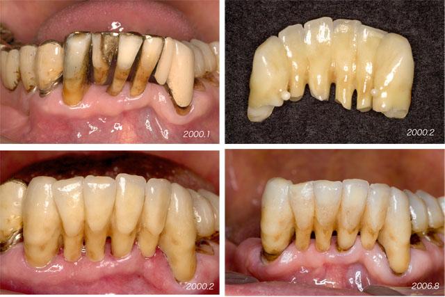 下顎の前歯  4                           Case 7_f0103459_1910620.jpg