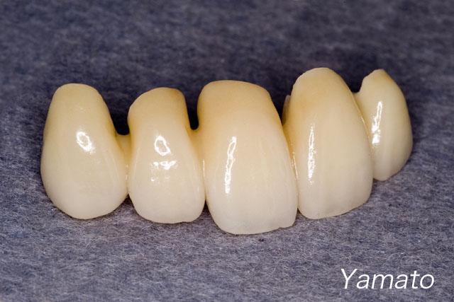 下顎の前歯  4                           Case 7_f0103459_19234193.jpg