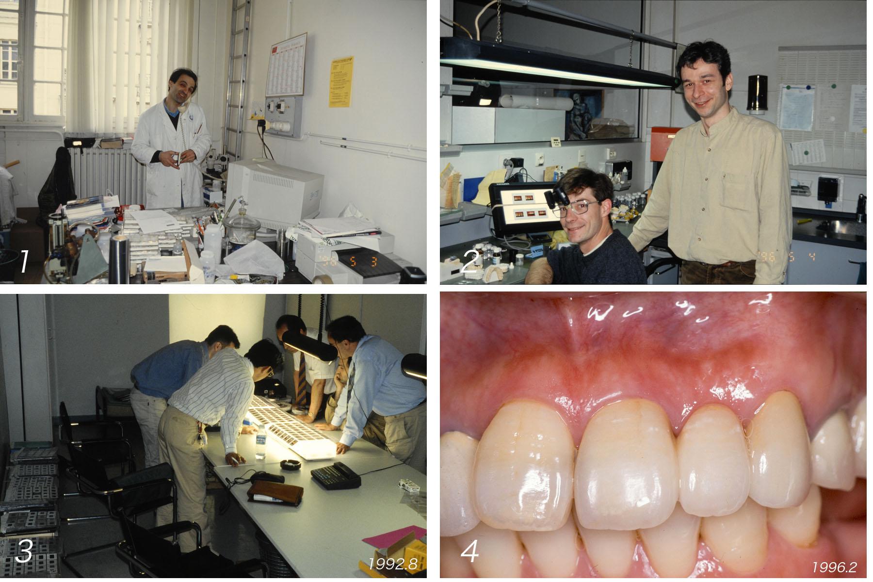 上顎の前歯部ブリッジ  Case 8_f0103459_15534477.jpg