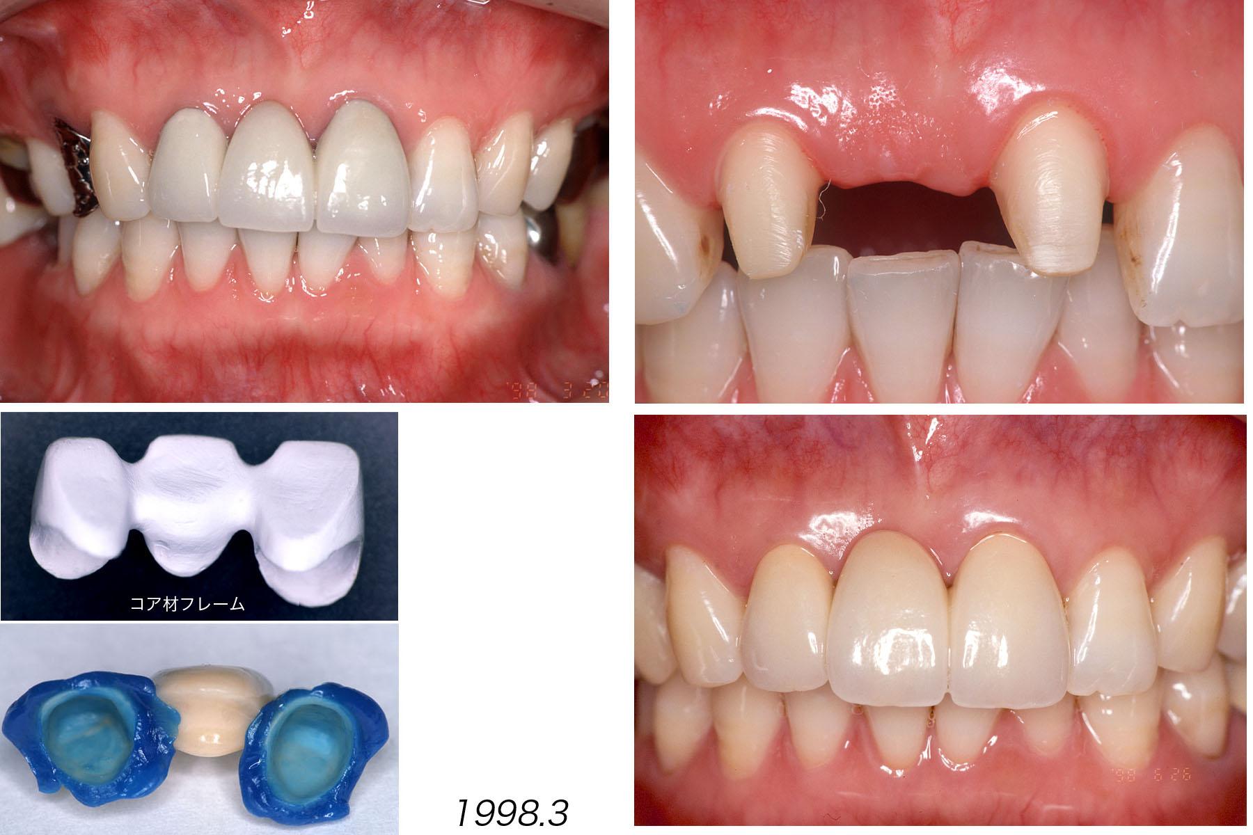上顎の前歯部ブリッジ  Case 8_f0103459_15552787.jpg