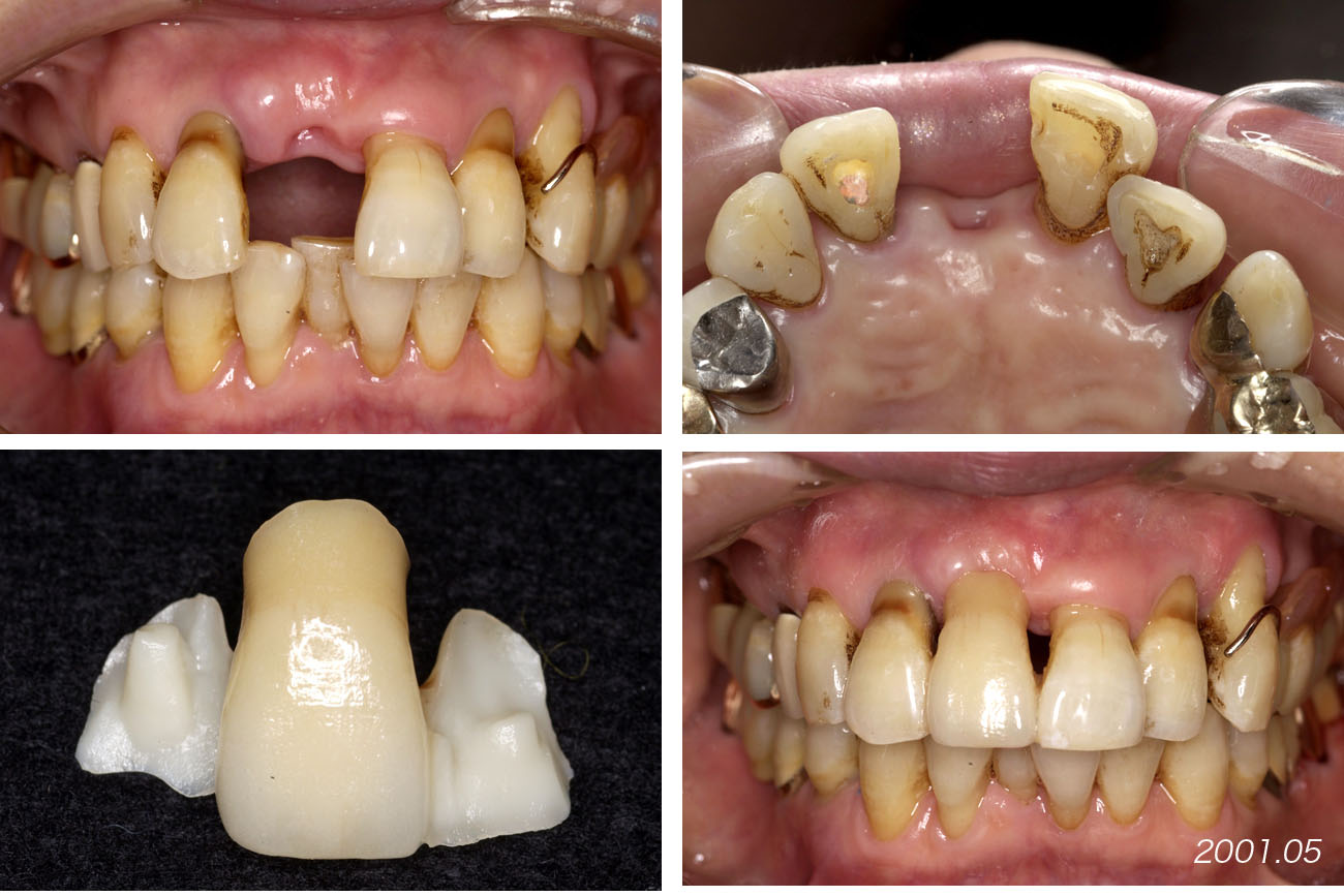 上顎の前歯部ブリッジ 2         Case 9_f0103459_1117560.jpg