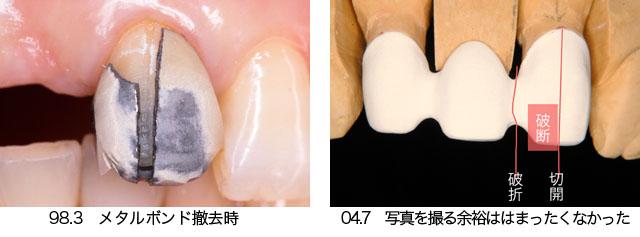 上顎の前歯部ブリッジ  Case 8_f0103459_885788.jpg