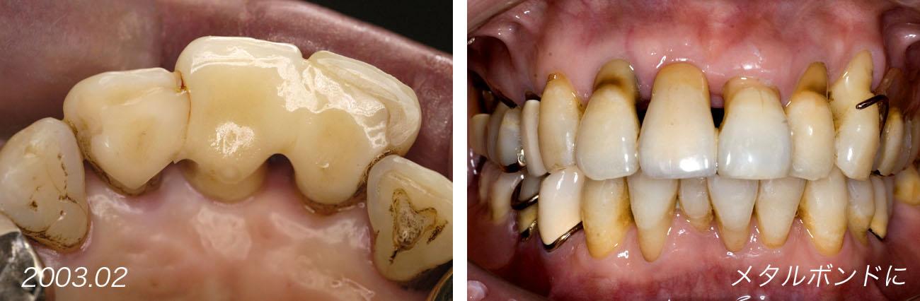 上顎の前歯部ブリッジ 2         Case 9_f0103459_1355204.jpg