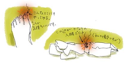 坐骨神経痛4_せんねん灸_c0023016_3345248.jpg
