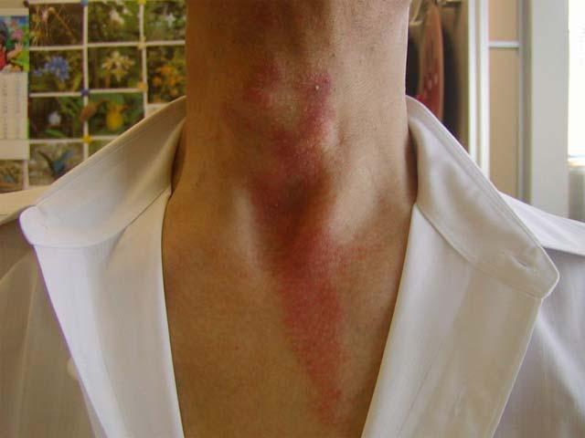 やけど虫の体液に触れて炎症を起こしている人の写真
