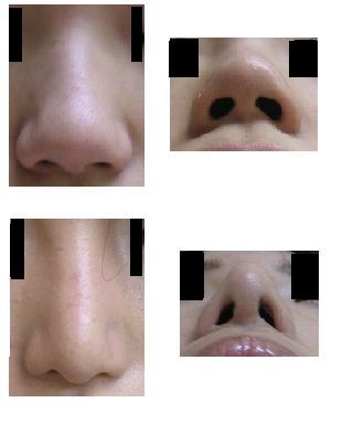 鼻尖縮小、小鼻縮小_d0092965_23441272.jpg