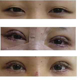 目:眼瞼下垂手術(挙筋短縮術)、たれ目形成術_d0092965_3453349.jpg