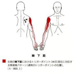 小臀筋、棘下筋のトリガーポイント_b0052170_15383634.jpg