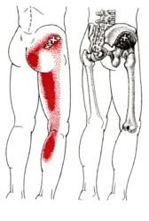 小臀筋、棘下筋のトリガーポイント_b0052170_15392417.jpg