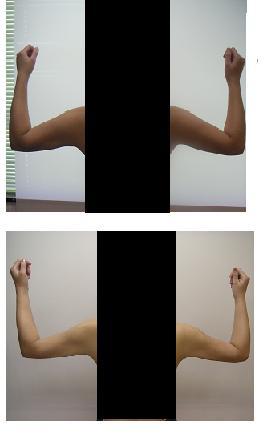 二の腕脂肪吸引_d0092965_04255.jpg