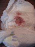 血便_d0005380_10262619.jpg