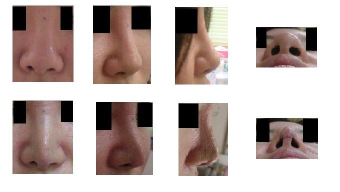 鼻尖縮小術(びせんしゅくしょうじゅつ)_d0092965_23593949.jpg