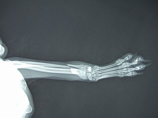 骨折の二匹_b0059154_1183840.jpg