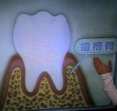 きょうの健康  歯周病_c0088525_112449.jpg