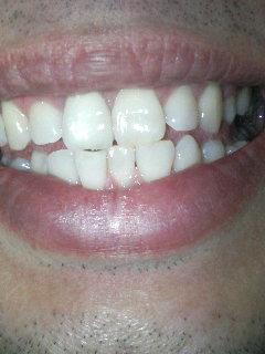 ハ、ハ、ハ、歯!_f0076322_21413256.jpg