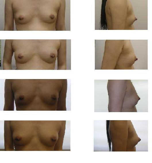 脂肪移植豊胸_d0092965_12026.jpg