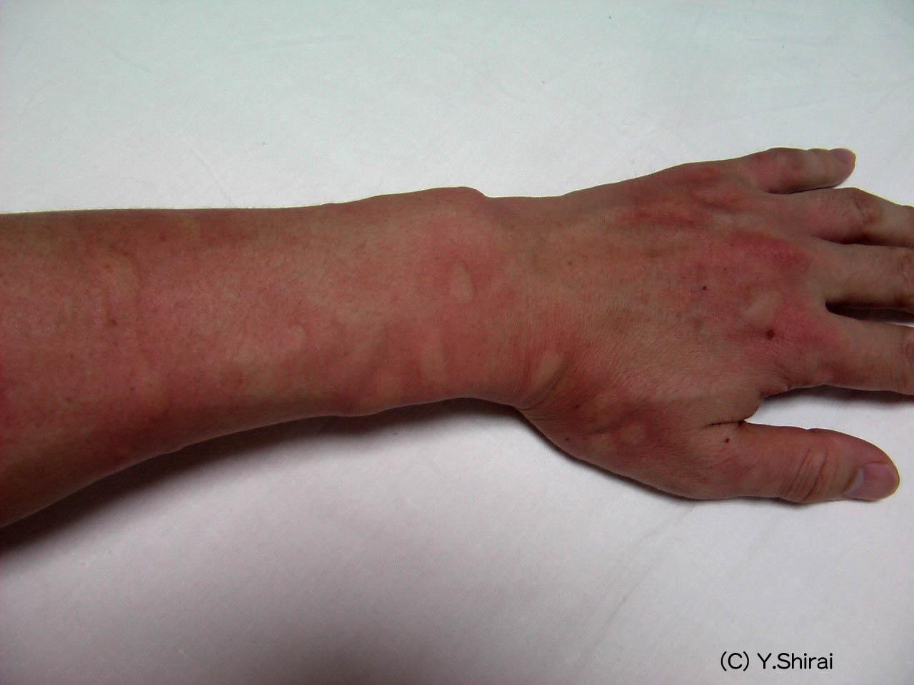 に 型 蚊 刺され やすい 血液