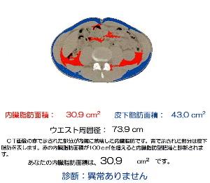 b0061337_2240041.jpg
