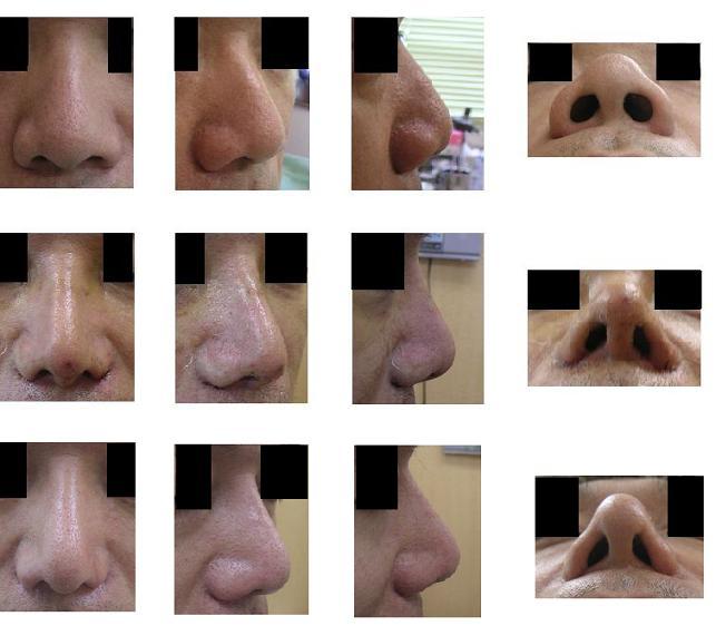 鼻尖縮小術、小鼻縮小術_d0092965_1415658.jpg