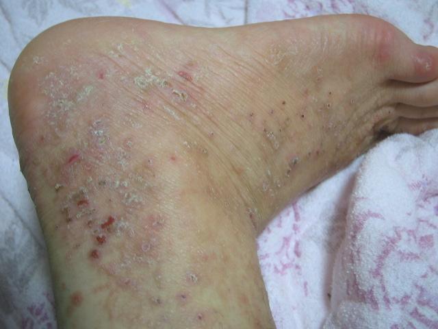 ふくらはぎ 蕁 麻疹